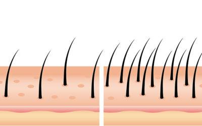 Ab wann sind nach einer Haartransplantation die Grafts fest?