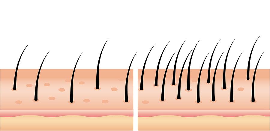 Ab wann sind nach einer Haartransplantation die Grafts fest