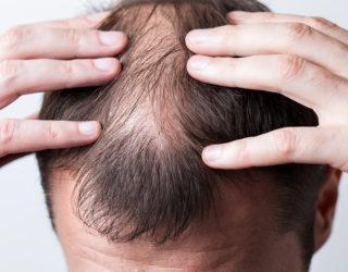 Alopecia congenita – die angeborene Haarlosigkeit