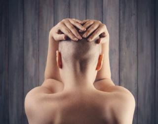 Alopecia totalis – kreisrunder Haarausfall