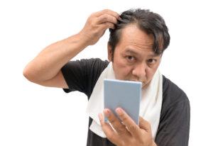 Alopezie Forum