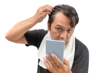 Alopezie Forum – Was tun bei Haarausfall
