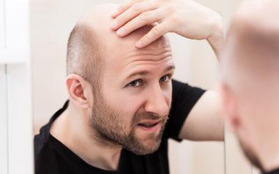Androgenetische Alopezie – Hormonell bedingter Haarausfall