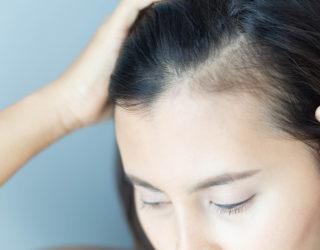 Androgenetischer Haarausfall bei Frau