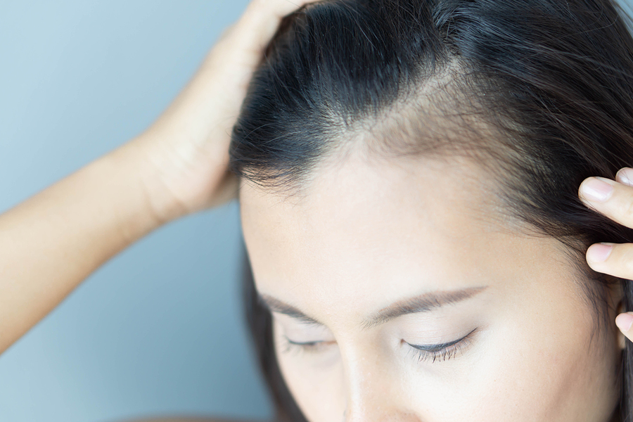 Androgenetischer Haarausfall Frau