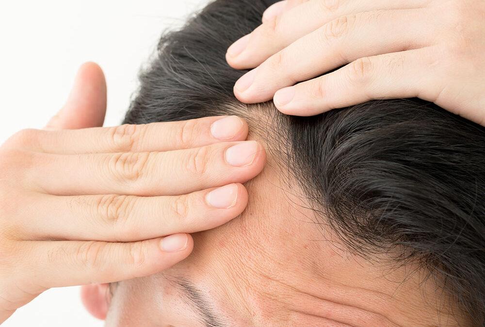 Angst vor der Haartransplantation