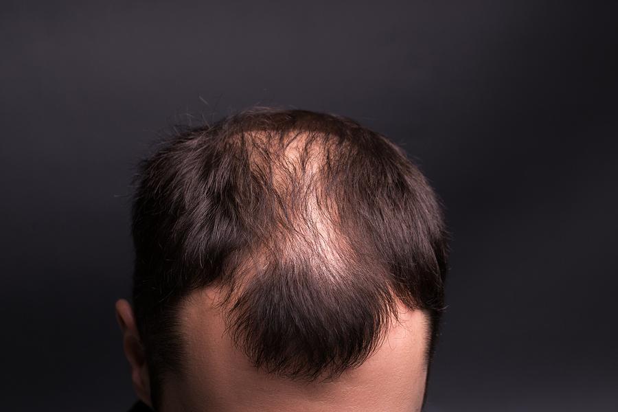 Die verschiedenen Arten von Haarausfall erkennen
