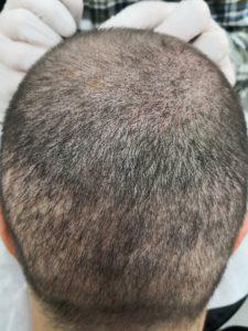 Bei der Haartransplantation in der Türkei war mir das Vorher Nachher Ergebnis sehr wichtig