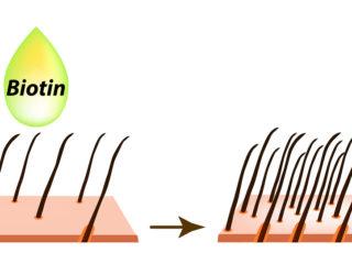 Biotin bei Haarausfall – Vitamine, Dosierung & mögliche Nebenwirkungen