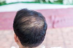 Cyproteronacetat bei Haarausfall Hoffnung für Frauen