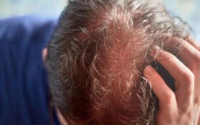 Empfindliche Kopfhaut – Ursachen, Symptome & das richtige Shampoo