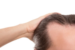Erblicher Haarausfall