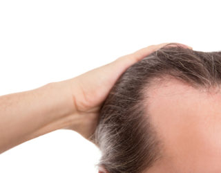 Erblicher Haarausfall bei Mann oder Frau stoppen – Was tun?
