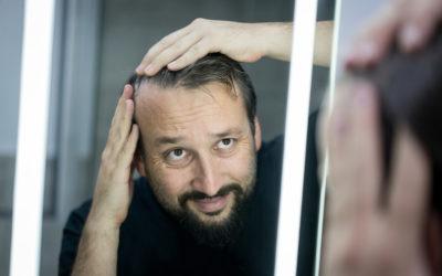 Erste Schritte bei Haarausfall