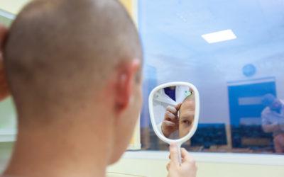 Extremer Haarausfall & seine Ursachen
