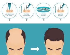 FUE Haartransplantation Methode