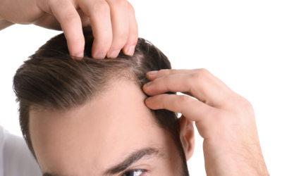 Glatze – Männer, Haarverlust & Geheimratsecken