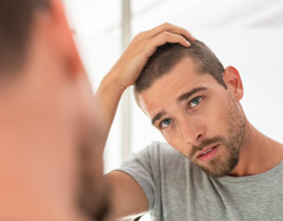 Geheimratsecken – Was können Männer tun?