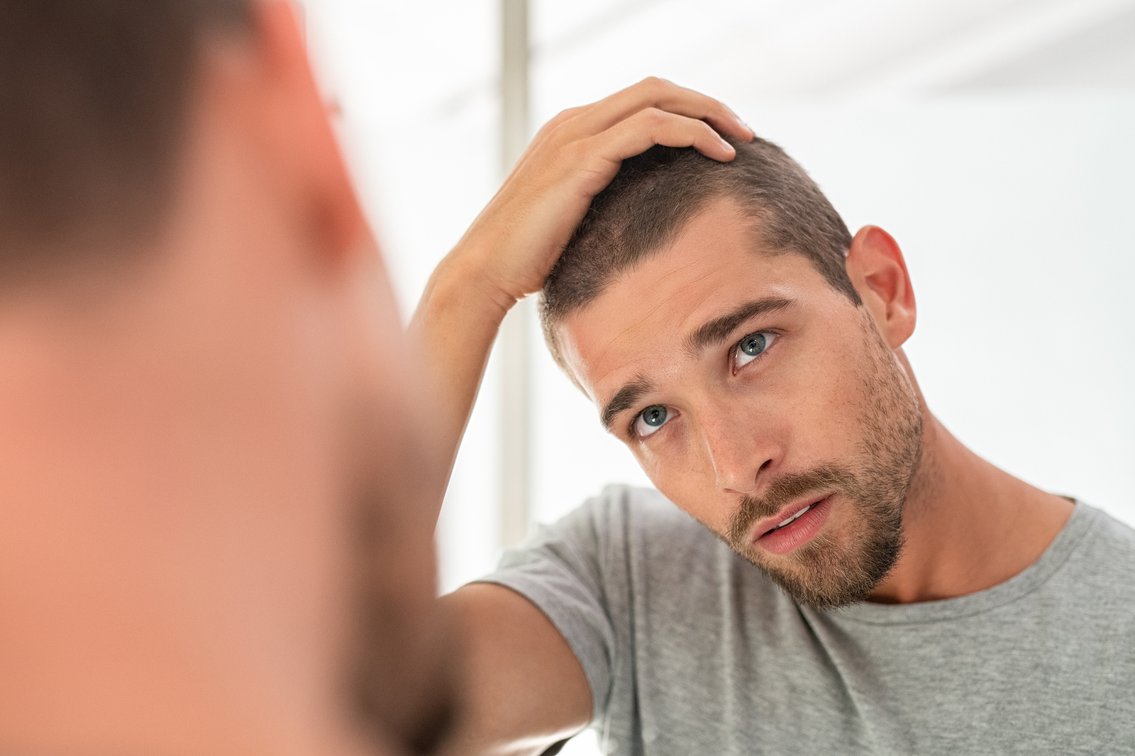 Geheimratsecken Was Konnen Manner Tun Haarausfall Hilfe