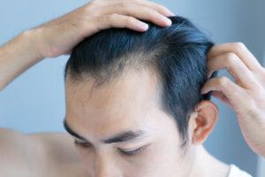 Gründe für eine Haartransplantation