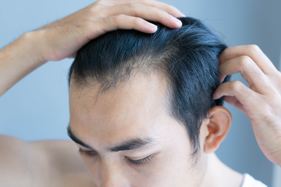 5 Gründe für eine Haartransplantation bei irreversiblem Haarschwund