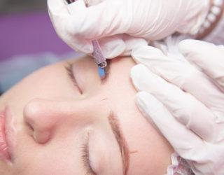 Haarausfall Augenbrauen und die möglichen Ursachen