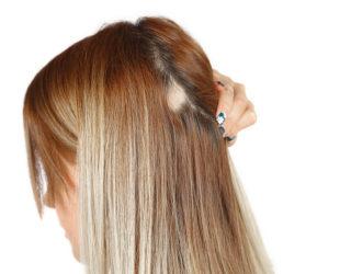 Haarausfall Frauen – Mittel gegen diffusen & erblich bedingten Haarverlust