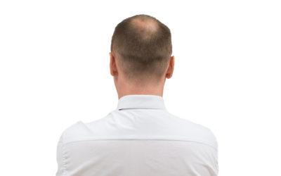 Haarausfall Männer – Ursachen