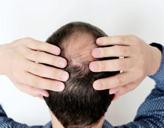 Haarausfall bei Männern – einfache Hilfsmittel