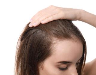 Haarverlust bei Teenager: verschiedene Ursachen