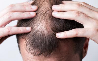 Haarausfall durch Kopfhauterkrankungen vorbeugen und behandeln