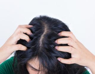 Haarausfall durch fettige Haare – so können Sie vorbeugen