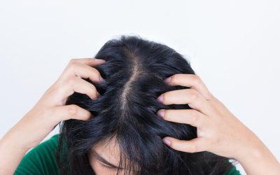 Haarausfall durch fettige Haare
