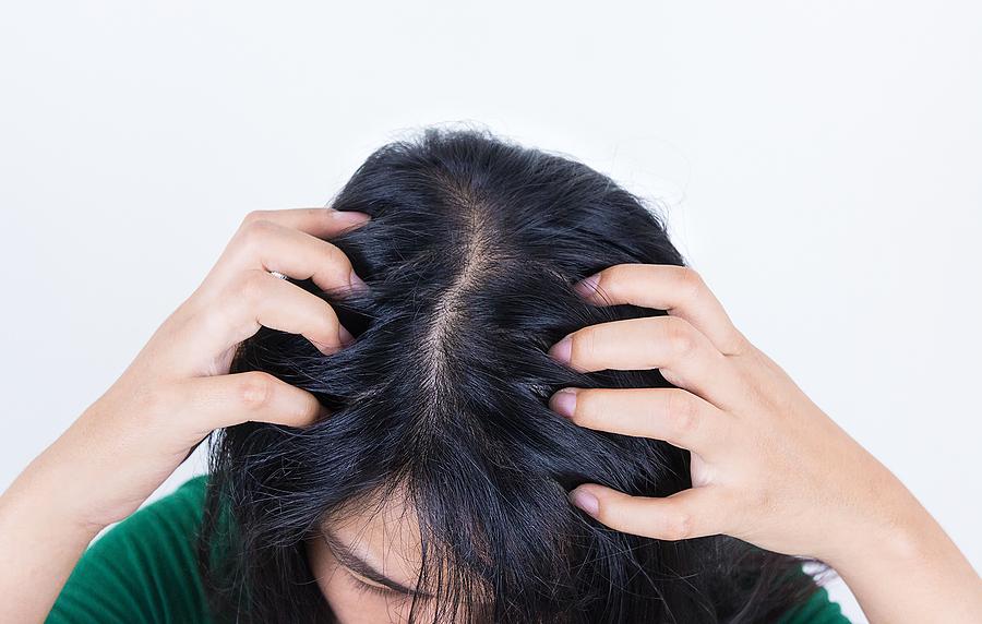 Haarausfall durch fettige Haare - so können Sie vorbeugen