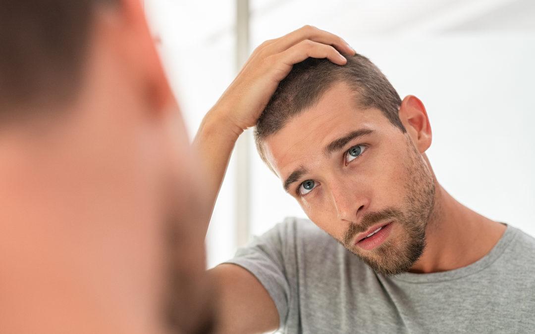 Haarausfall mit Anfang 20: Verschiedene Ursachen