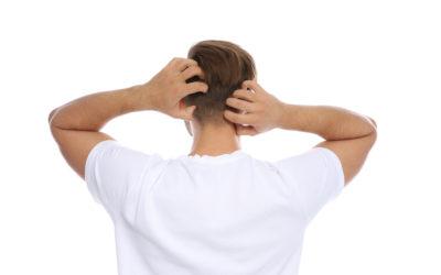 Haarausfall und Schuppen – Was tun bei trockener Kopfhaut
