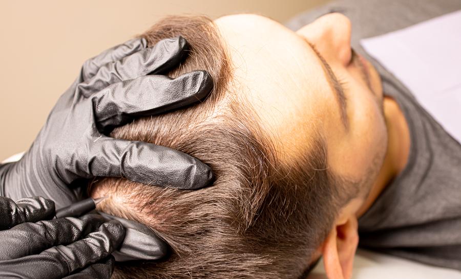 Haare tätowieren lassen