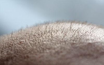 Haarpigmentierung als Alternative zur Haartransplantation?