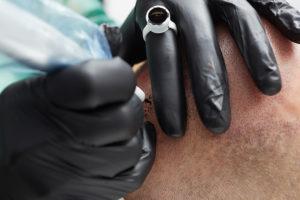 Haarpigmentierung in Österreich