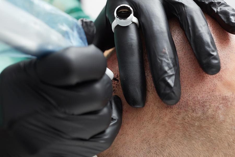 Die Haarpigmentierung in Österreich