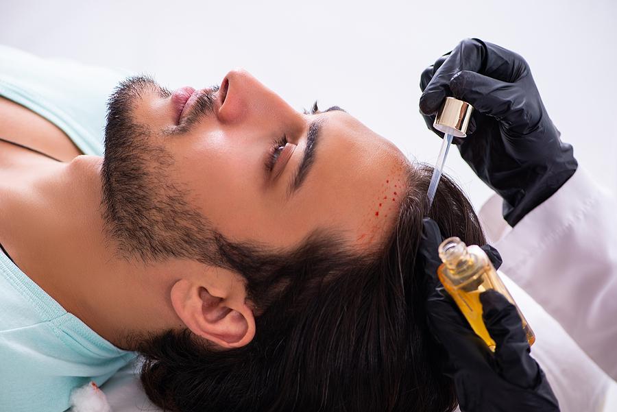 Haartransplantation Alternativen
