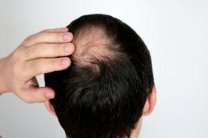 Haartransplantation am Oberkopf