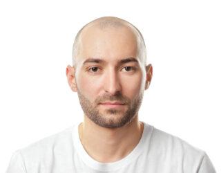 Haartransplantation bei Halbglatze