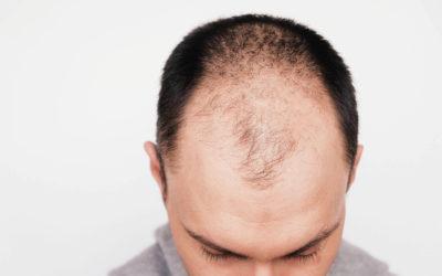 Haartransplantation bei Vollglatze