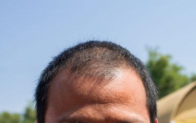 Haartransplantation bei lichtem Haar: Ist das möglich?