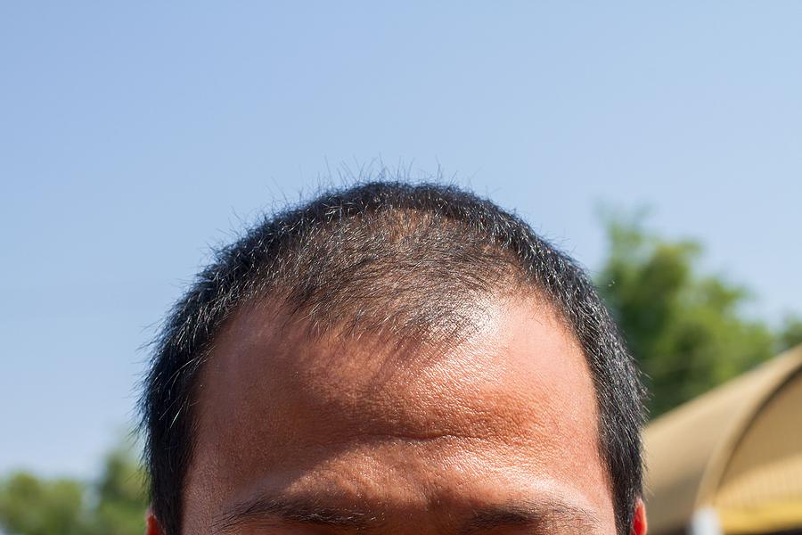 Haartransplantation bei lichtem Haar