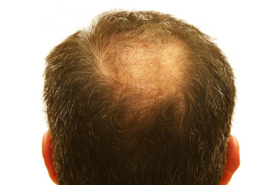 Haarverlust – Was tun gegen Haarausfall