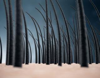 Haarwachstum beschleunigen – Haarwuchsmittel die anregen & fördern