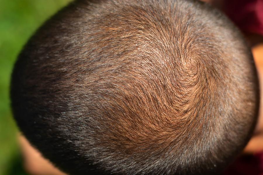 Haarwachstum pro Monat