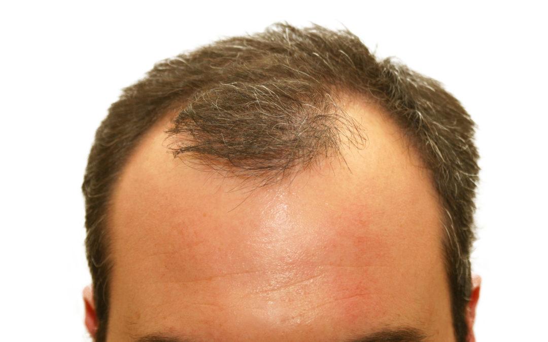 Homöopathie Haarausfall – Haarwachstum bei Frau & Mann fördern
